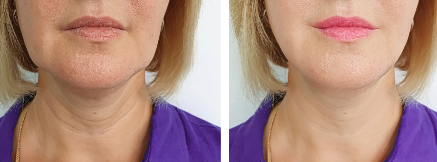 Fac and Neck Rejuvenation with IPL