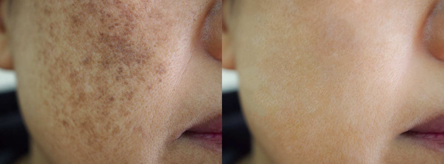 Treatment of Facial Pigmentation with IPL